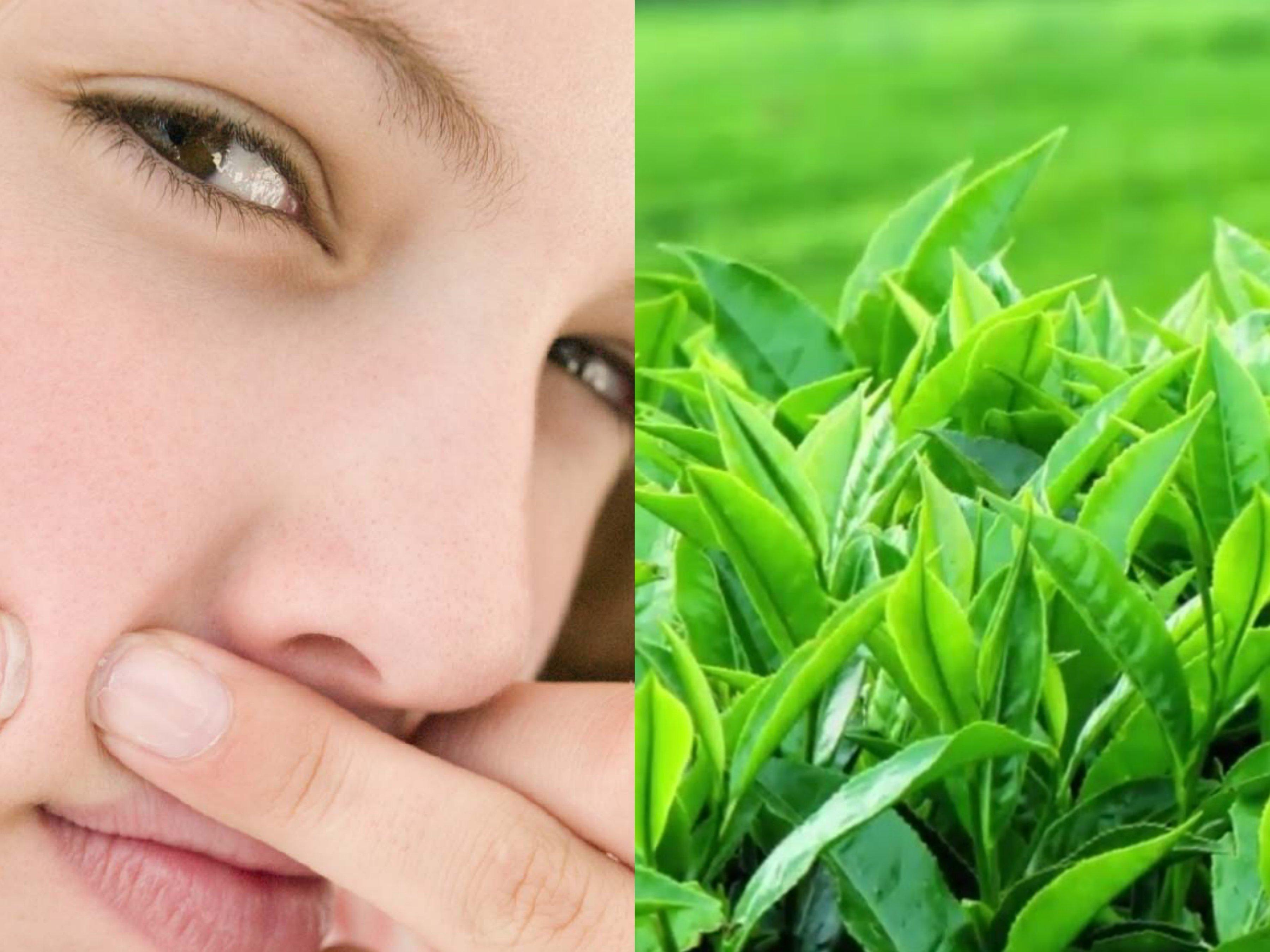 Lá trà xanh trị mụn hiệu quả