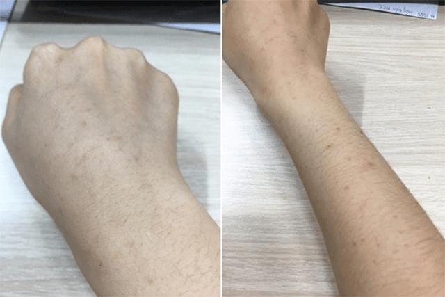 Trị nám tàn nhang trên tay bằng cà tím