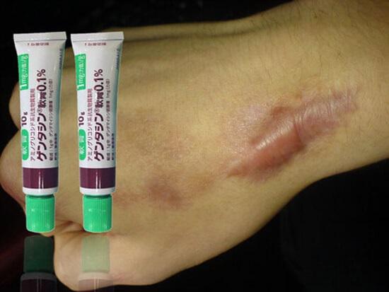 Cách sử dụng kem trị sẹo Nhật Gentacin