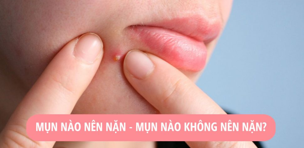 Những loại mụn tuyệt đối không nên nặn nếu không muốn da tổn thương
